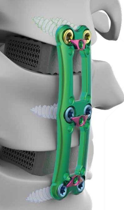 3D printing spinal fix Peyton Manning